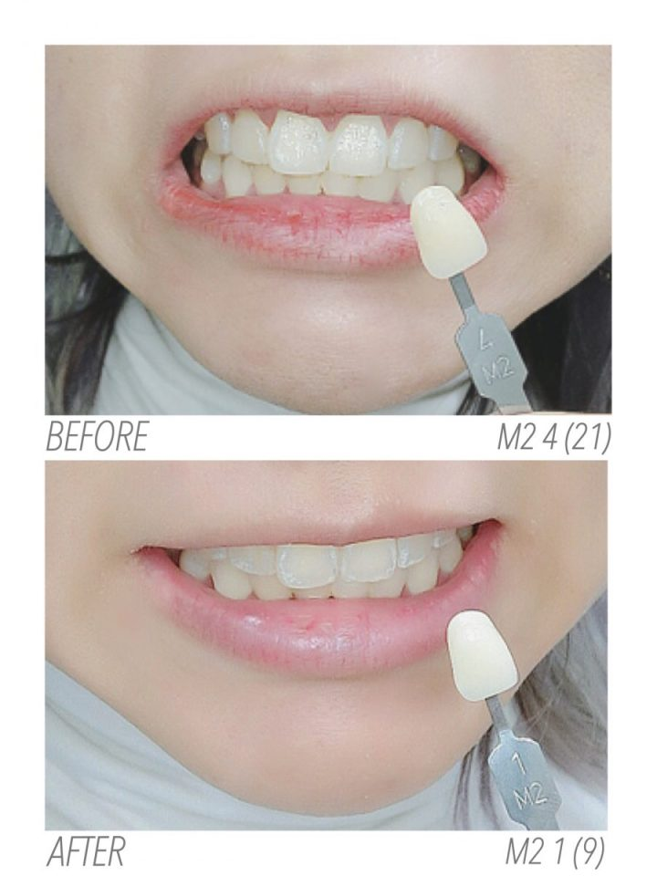 BRIGHTTONIX Y10 MOUTH REJUVENATION - TEETH WHITENING - CENTRE FOR COSMETIC REJUVENATION & SURGERY (9)
