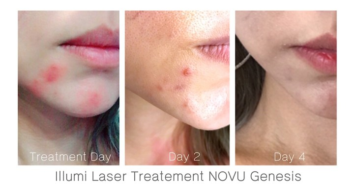 Illumi Laser at New Flagship Clinic NOVU Genesis