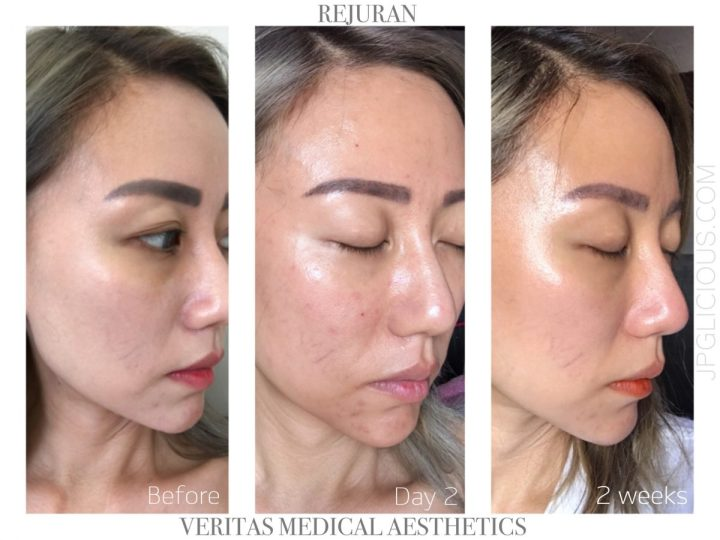 Rejuran-Veritas Medical Aesthetics-Jpglicious (4)
