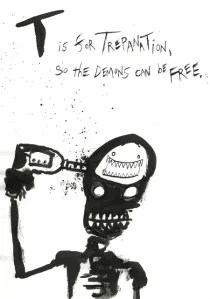 trepanation_2