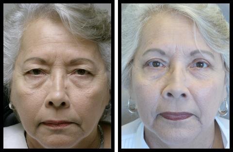 upper eyelids blepharoplasty-007