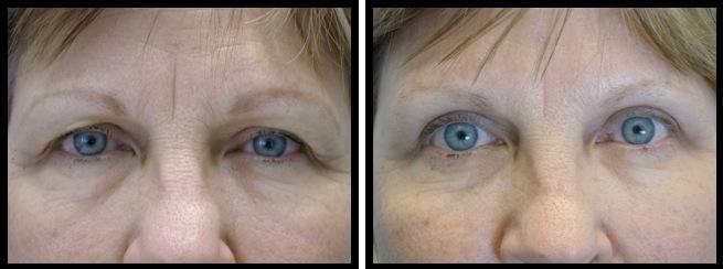 upper eyelids blepharoplasty-009