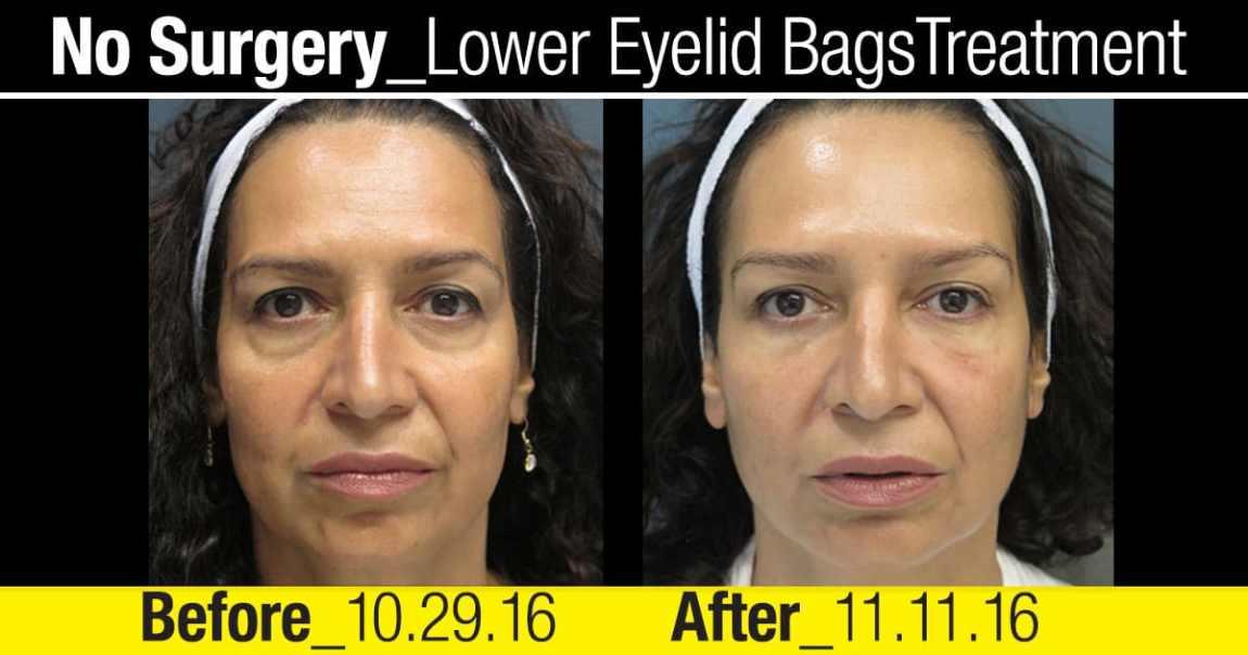 cbc-nyc-2016-patient-testimonial-no-surgery-lower-eyelid-treatment