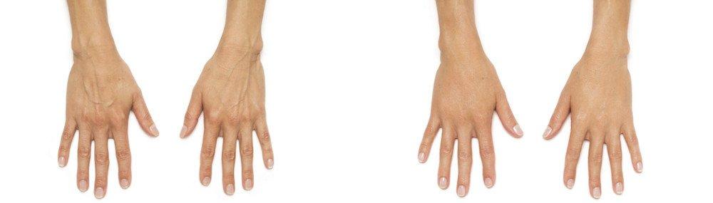radiesse hands patient andrea