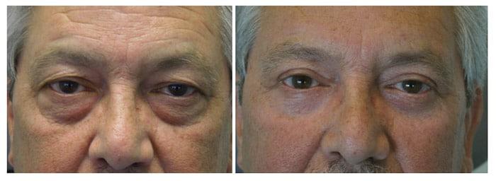 Droopy eyelids in men 2