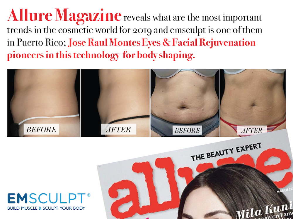 allure magazine says that emsculpt is one of the most important trends in the 2019 cosmetic world