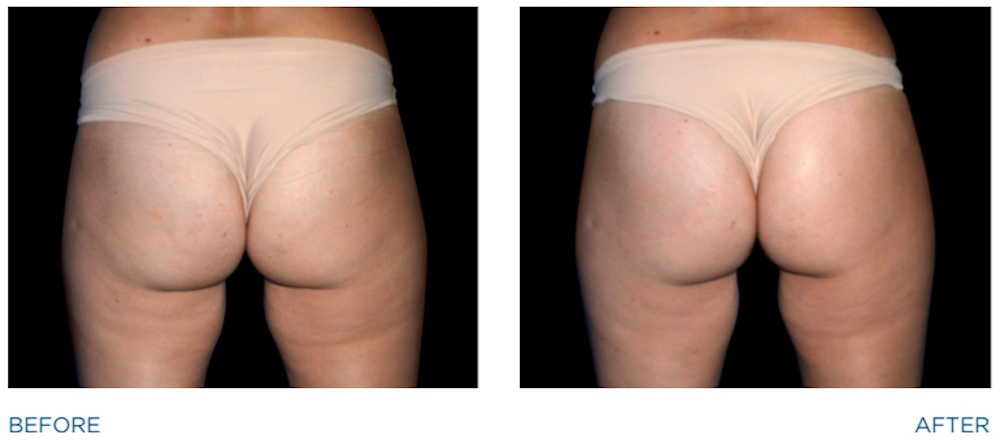 emsculpt before and after image of woman's buttocks