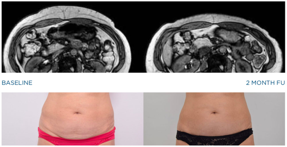 emsculpt mri study images 2 months after treatment