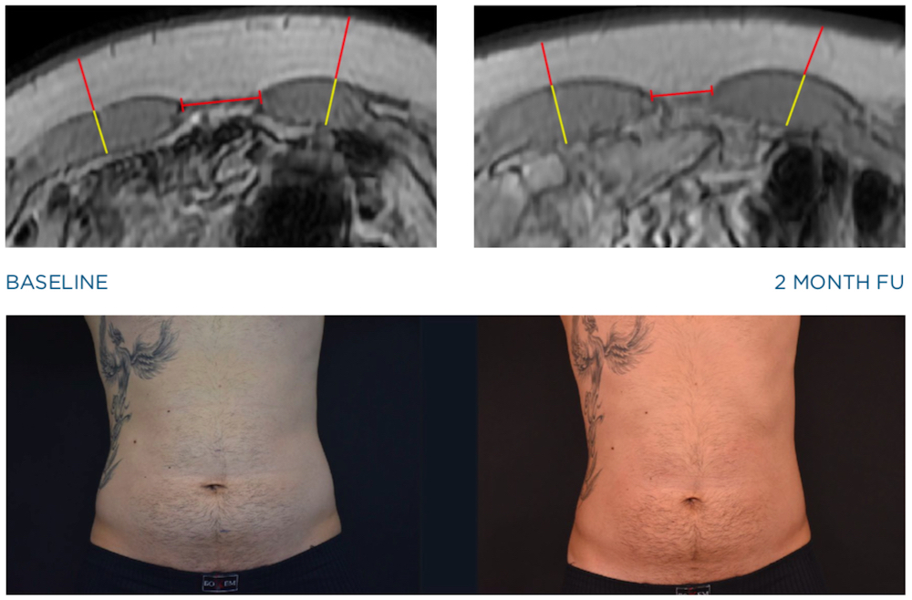 emsculpt mri images of male abdomen