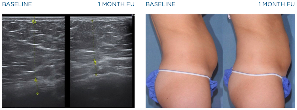 emscupt before and after images of ultrasonography on abdomen