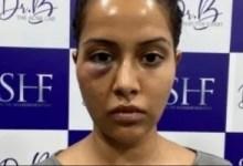 डॉक्टर स्पष्ट करते हैं कि वास्तव में रायजा विल्सन के चेहरे का इलाज क्या हुआ