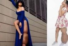 Meet this inspiring model suffering from a rare condition, her leg weighs 45 kgs