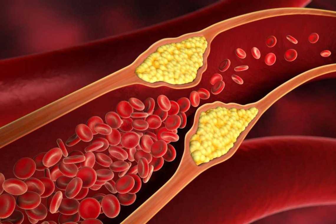 Bahaya Penyakit Kolesterol yang Anda Derita