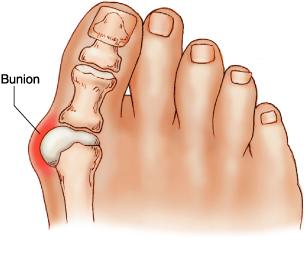Sepatu Medis Untuk Penderita BUNION Penyakit Sendi Kaki