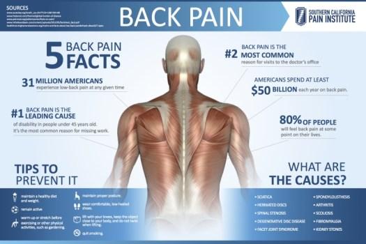 Infografía sobre el dolor de espalda.