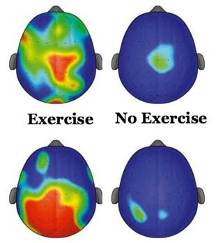 Brain: exercise vs no exercise