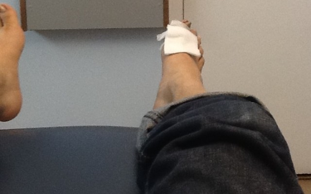 This was the first procedure to partially remove part of an ingrown toenail, in April 2012. Partially removing my toenail has become a yearly ritual.