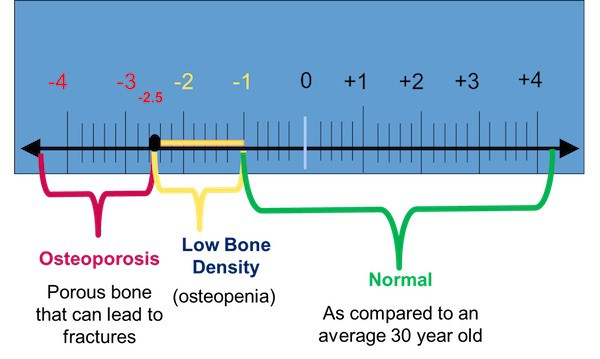 osteoporosis+DEXA-Tscores