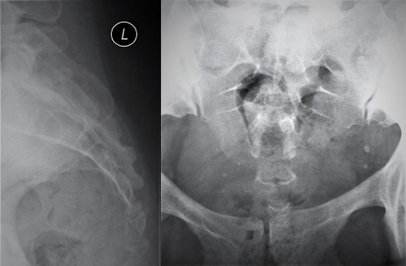 Female Sacrum And Coccyx
