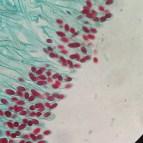 Peziza ascospores