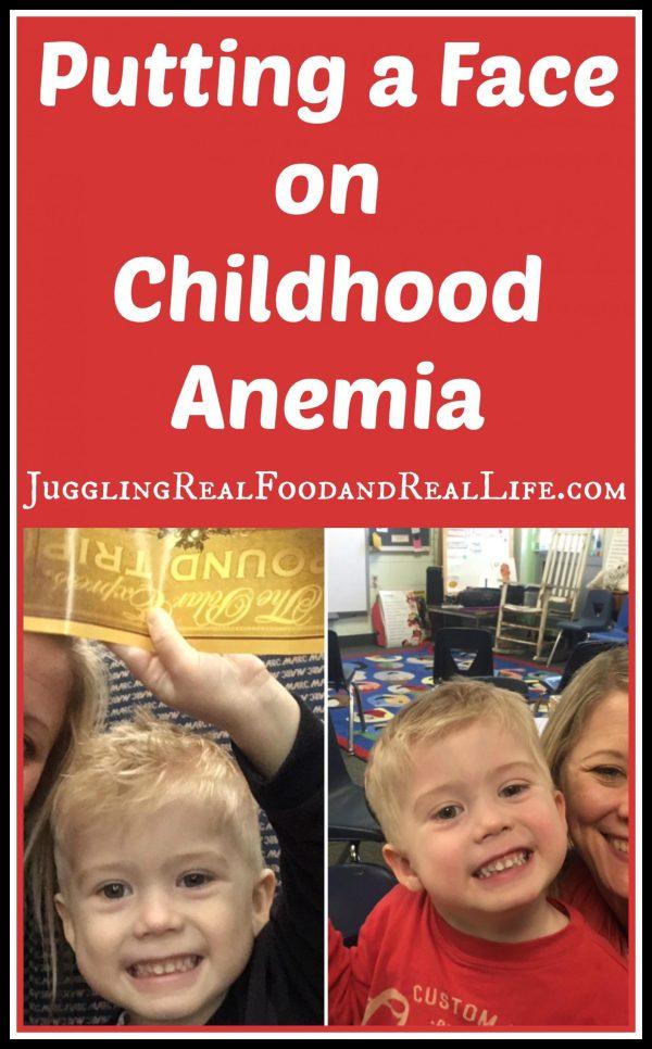 Childhood Anemia