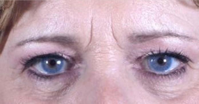 vertical lines between eyebrows
