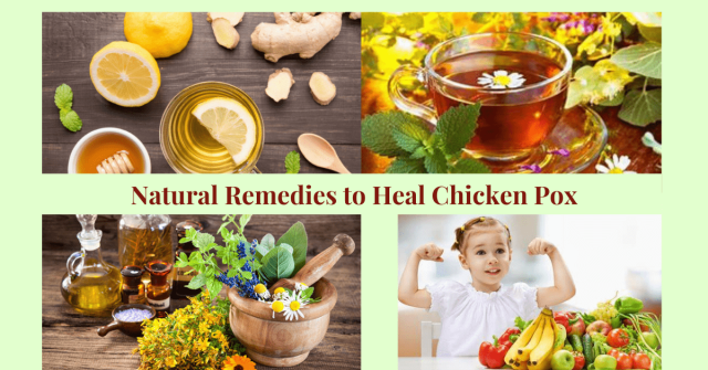 Natural Remedies to Heal Chicken Pox