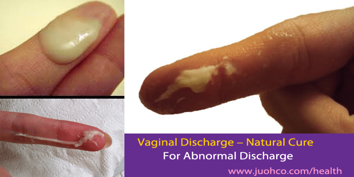 Vaginal Discharge  Natural Cure For Abnormal Discharge-5310