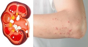 8 Signs Your Kidney Is In Danger and Signs your Body Give You