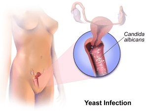 Yeast Infection 0