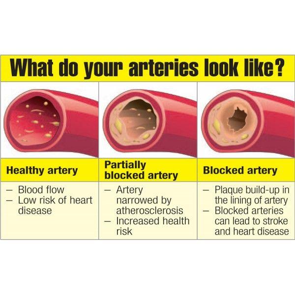 How Block Arteries happen