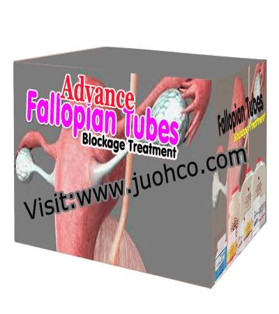 Advance fallopian tubes treatment pack 12