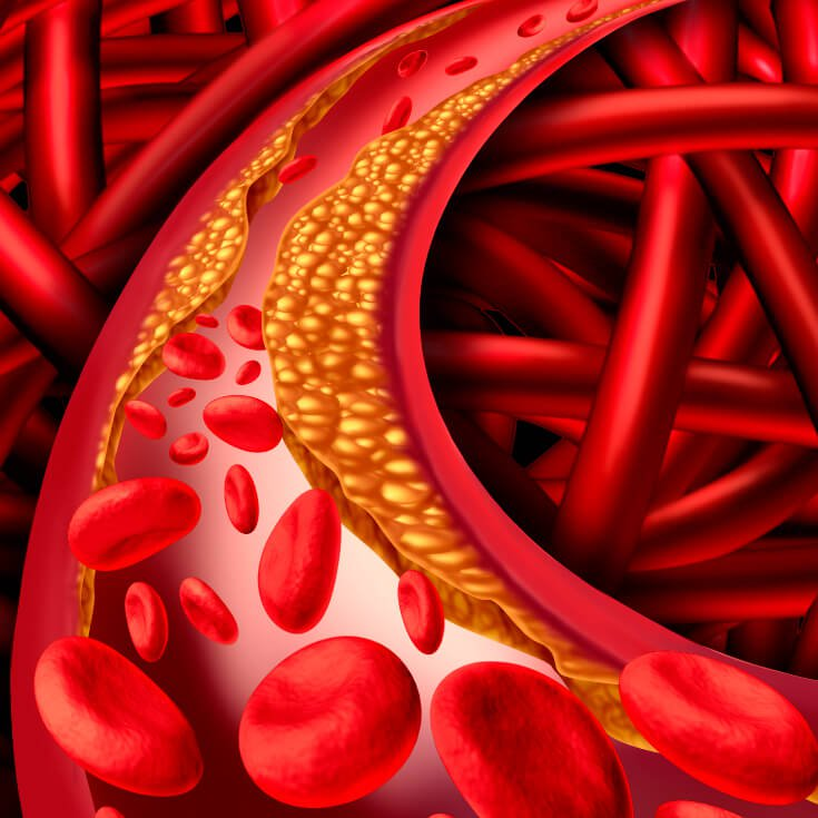 Natural Remedies for Arteriosclerosis – Symptoms, Causes
