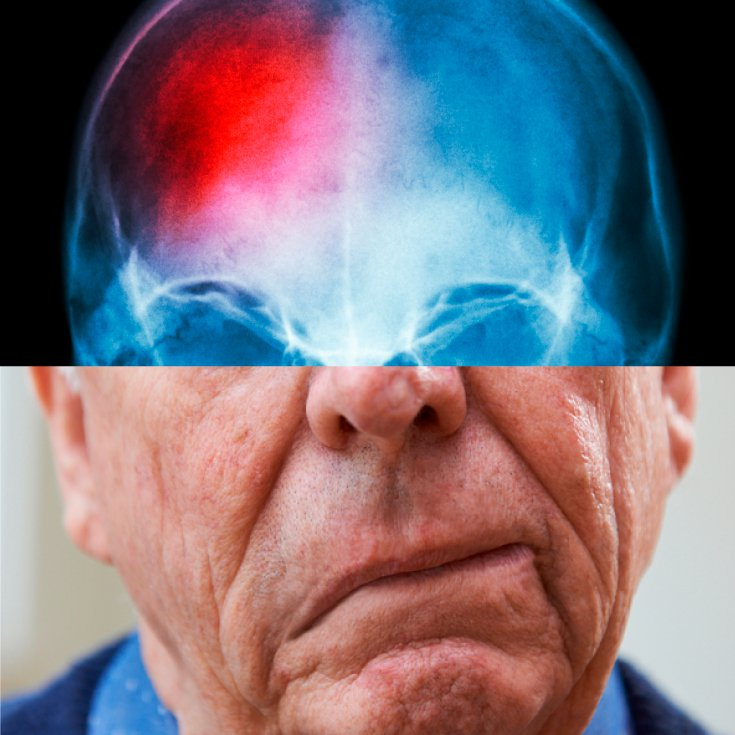 List Of 23 Warning Signs and 14 Natural Ways to Recover from a Stroke