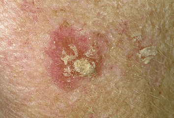 actinic-keratosis-treatment-jupiter