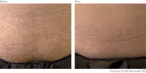 laser-hair-removal-before-after-picture