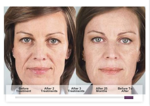 sculptra-before-after-pictures