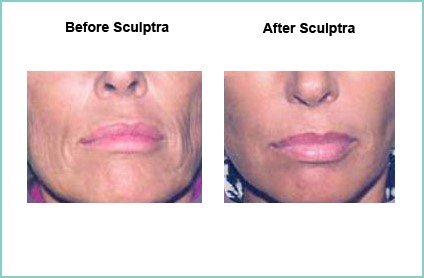 sculptra-results-pictures