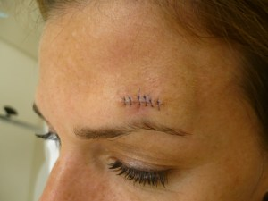 reconstructive-surgery-after-skin-cancer