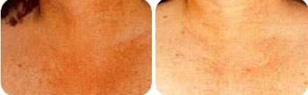 ipl-photofacial-neck