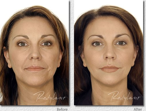 restalyne-before-after-picture