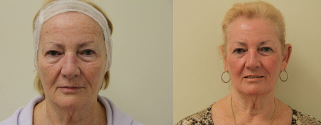 total-fx-before-after-picture