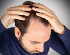 Hair Restoration - Permanent Hair loss Solutions