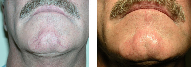 yag-before-after-vascular-therapy