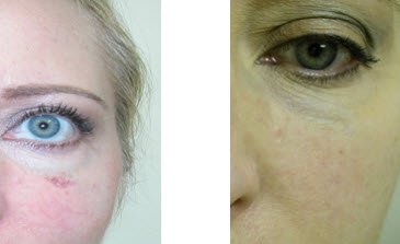 yag-before-after-vein-therapy