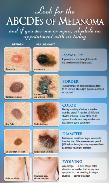 melanoma-facts-abcd