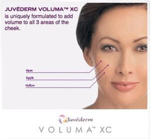 voluma-treatment