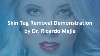 Skin Tag Removal Demonstration by Dr. Ricardo Mejia