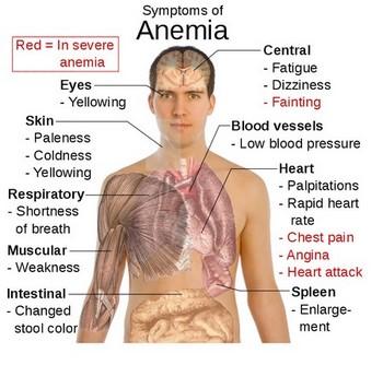 in Adult symptom anemia