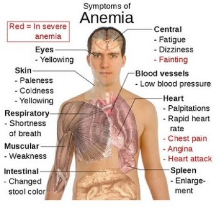 what is the relationship between vitamin c and iron deficiency anemia